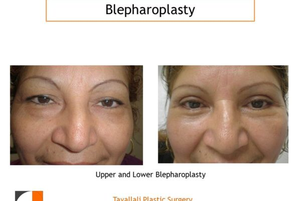 Woman with upper and lower Eyelid lift Blepharoplasty before after