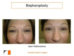 upper Eyelid lift Blepharoplasty before after in woman
