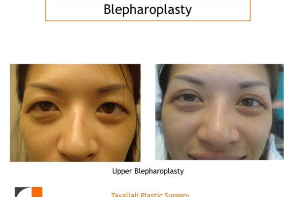 Westernization of asian eyelids upper eyelid surgery