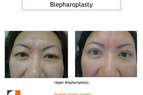 Upper Eyelid lift Blepharoplasty before after skin and fat removal