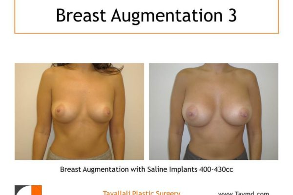 Breast augmentation with saline implants 400-430 cc