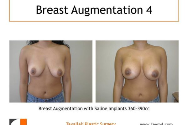 360-390cc implants for breast enlargement