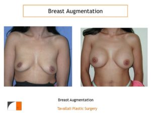Breast augmentation before after virginia