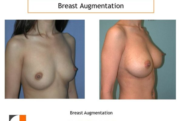 Breast enlargement before after