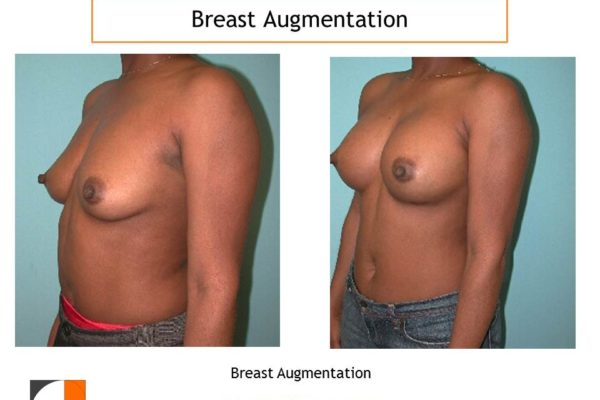 Breast augmentation before and after saline implants