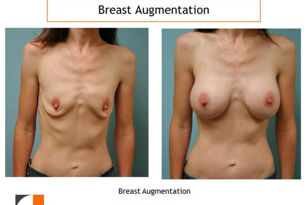 Breast augmentation over muscle with saline implant