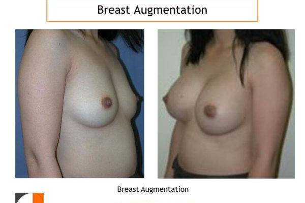 Breast enlargement surgery with implants
