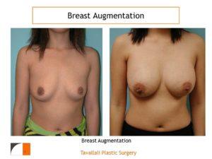 Breast enlargement with saline implants VA