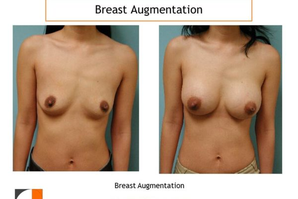 Breast enlargement to size B cup with implant