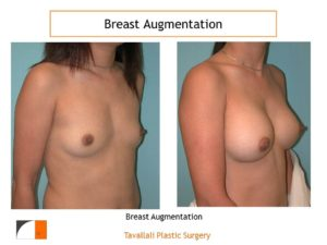 Breast enlargement to size C cup with implants