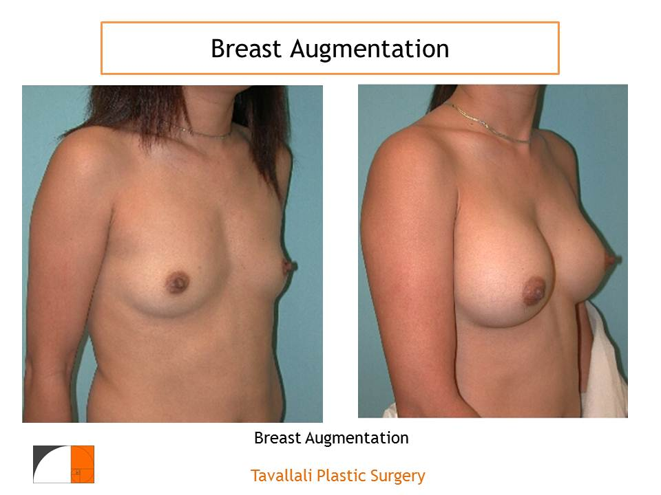 Secondary Surgery in Cosmetic Breast Augmentations