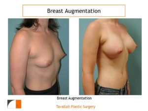 Breast augmentation cup c before after