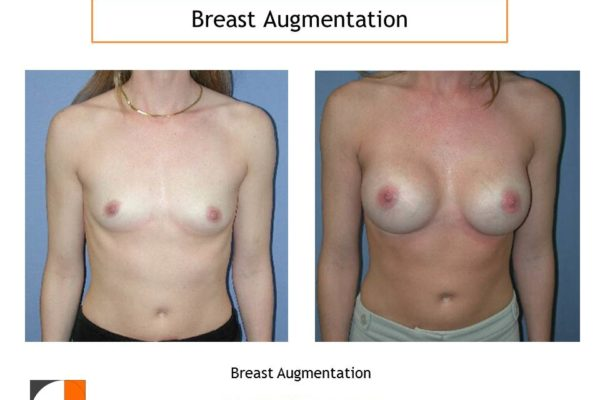 Breast augmentation before and after VA