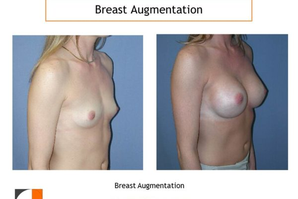 Breast augmentation before after VA