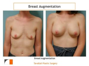 Breast enlargement in woman with small breasts