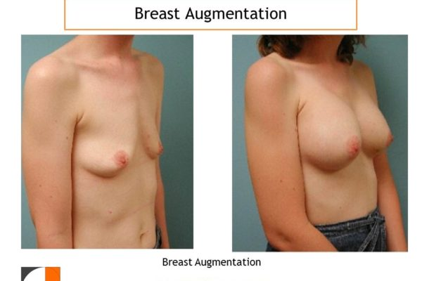 Breast enlargement with implants in woman with small breasts
