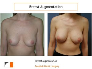 Befora and after of breast augmentation with implants