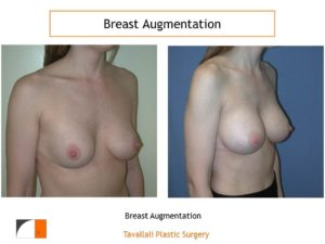 Breast enlargement before after with saline implants