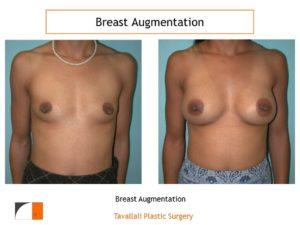 Breast augmentation intra areolar scar