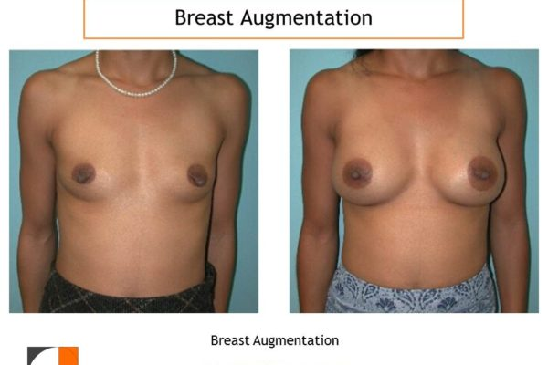 Breast augmentation intra areolar scar