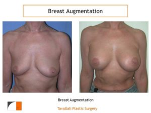 Breast augmentation surgery before after