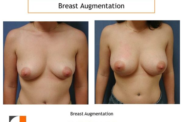 Breast augmentation saline implants intra areolar scar