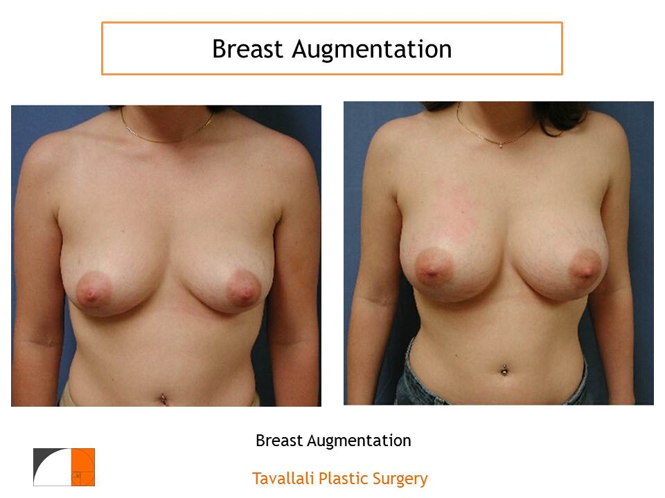 Saline or Silicone Breast Implants?