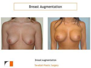 Breast enlargement high profile saline implants