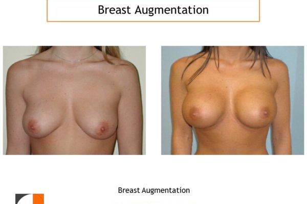 Breast enlargement high profile saline implants