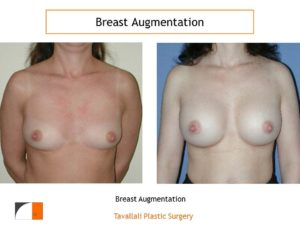 Breast augmentation moderate profile silicone implants