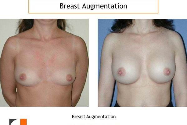 Breast augmentation moderate profile silicone implants
