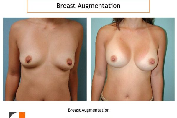 Breast augmentation surgery before after result