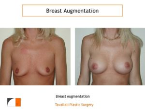 Breast augmentation moderate profile saline implants