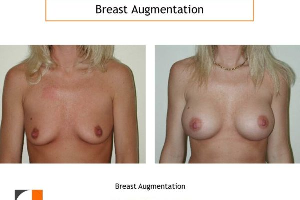 Breast augmentation moderate profile saline implants