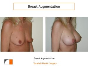 Breast enlargement with saline and silicone implants virginia
