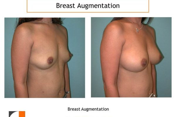 Breast augmentation with small silicone implants
