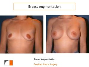 Breast augmentation before after in woman with two breast sizes
