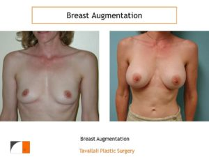 Breast augmentation silicone implants before after