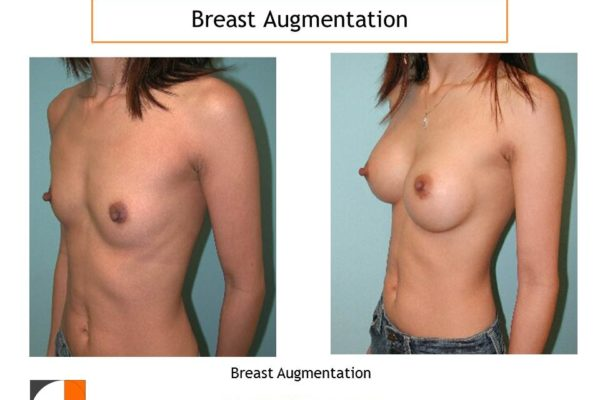 Flat chest breast augmentation before after with implants