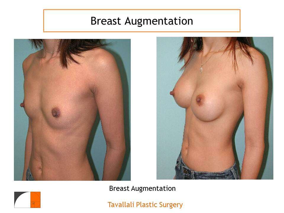 Treatment of Abnormal Breast Pain After Breast Augmentation-1