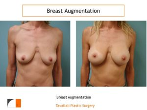Droopy breasts with breast augmentation with silicone implants