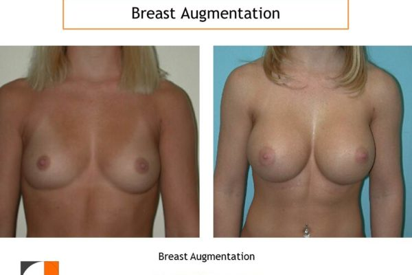 Large saline implant breast augmentation