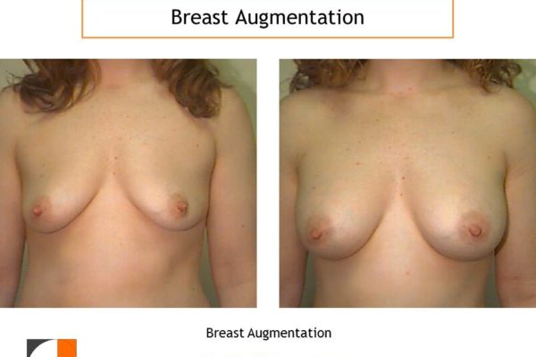 small saline implant breast augmentation