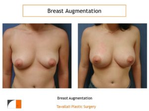 2 different volumes in saline implants to achieve symmetry