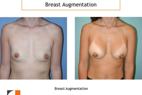 small saline implants for breast enlargement