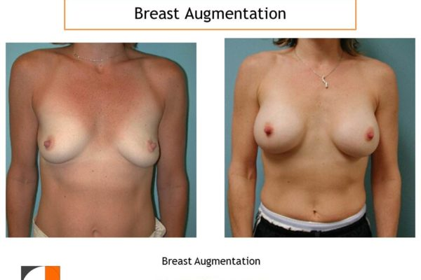 Small breast augmentation before after