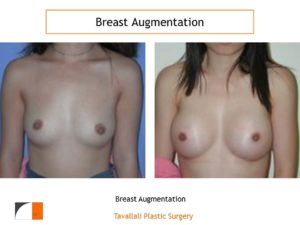 Early breast augmentation result with saline implants