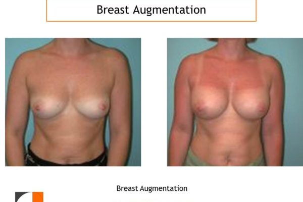 Breast augmentation surgery with implants