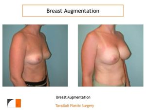 Breast augmentation surgery result Virginia