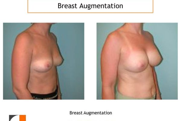 Breast augmentation surgery result Virginia